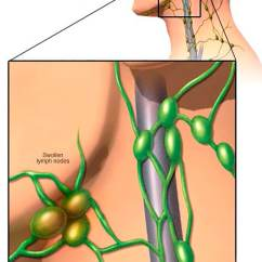 Where Are My Lymph Nodes Diagram Relay Switch Wiring Ac Swollen Symptoms And Causes Mayo Clinic
