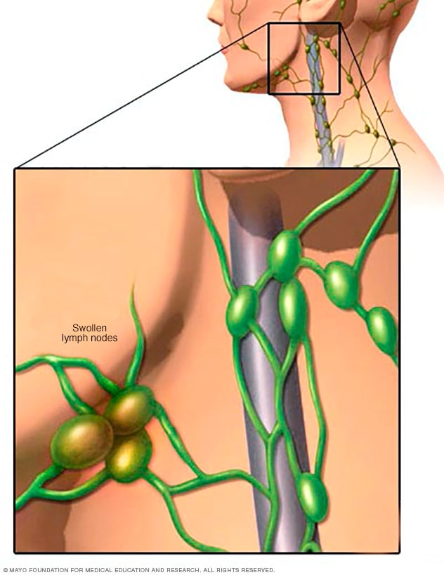 where are my lymph nodes diagram 2003 gm radio wiring swollen symptoms and causes mayo clinic
