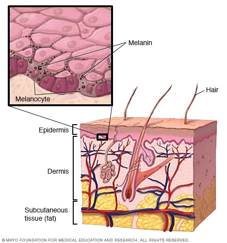 skin layers diagram labeled simple limitorque wiring spanish and electrical schematic vitiligo symptoms causes mayo clinic rh mayoclinic org of human worksheets