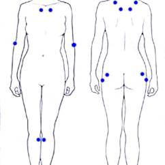 18 Tender Points Of Fibromyalgia Diagram Hayward Super Ii Pump Wiring Mayo Clinic Illustration Locating The Associated With