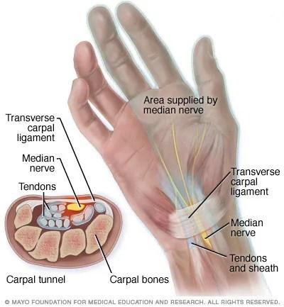 hand nerves diagram 1987 peterbilt 359 wiring carpal tunnel anatomy mayo clinic