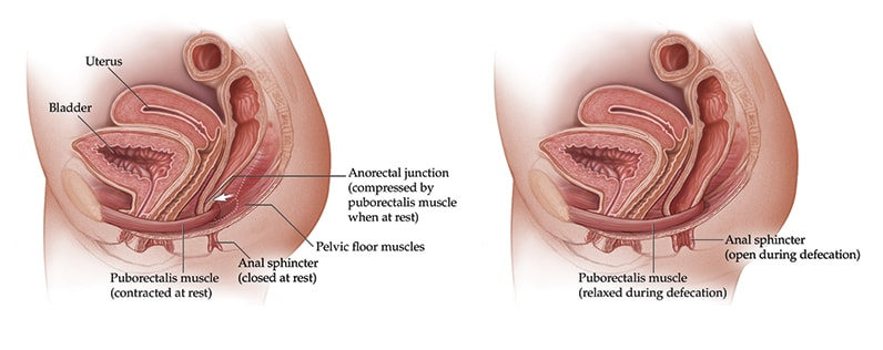 Treating patients with pelvic floor dysfunction  Mayo Clinic