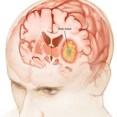 Lower Brain Diagram Poe Cable Wiring Tumor Symptoms And Causes Mayo Clinic