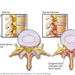 Best Chair After Lower Back Surgery Folding V-tip Caps When Is It A Good Idea Mayo Clinic Implanted Artificial Disks Are Treatment Alternative To Spinal Fusion For Painful Movement Between Two Vertebrae Due Degenerated Or Injured Disk