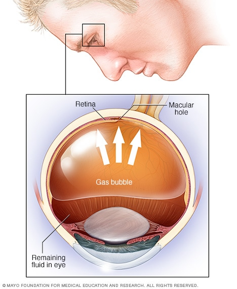 Иллюстрация, изображающая пневматическую ретинопексию