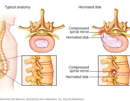 Image result for pinched nerve