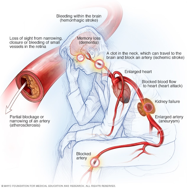 High Blood Pressure Dangers Hypertension's Effects On