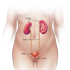 Diagram Of Where Kidneys Are Water Phase Change Worksheet Kidney Stones Symptoms And Causes Mayo Clinic Female Urinary System