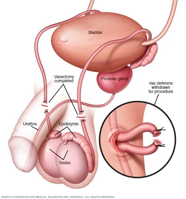 """Bildergebnis für """"vasectomy"""""""
