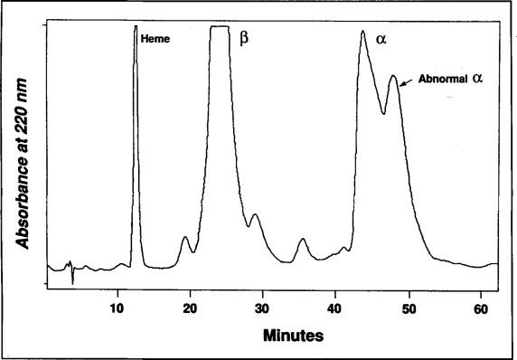Hemoglobin Columbia Missouri or α2[88 (F9) Ala→Val]β2: A