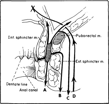 Diagram Of Abscess