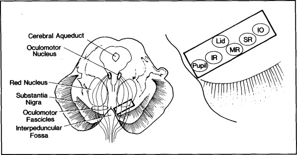 Localization of Lesions of the Oculomotor Nerve: Recent