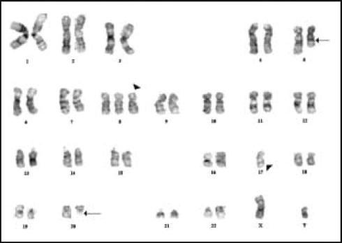 Genetic Testing in the Myelodysplastic Syndromes