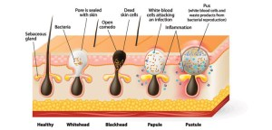 Causes, signs and symptoms, prevention and treatment of acne