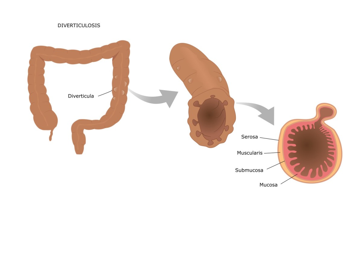Diverticolite: cause, sintomi e cure