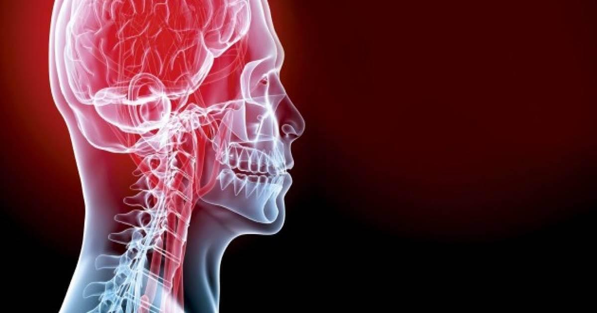 Emorragia cerebrale: Quali sono i sintomi? Quali sono i fattori che riducono i rischi?