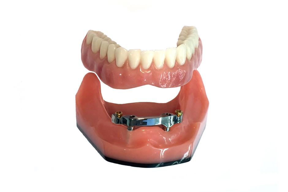 Implant Denture Abutments Locator Retained