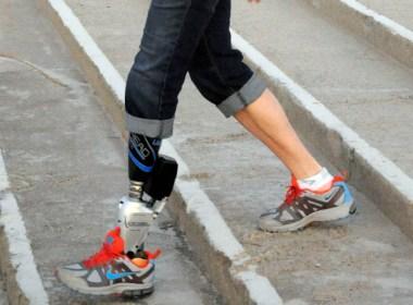 iWalk's bionic foot and ankle. (astepaheadprosthetics.wordpress.com)