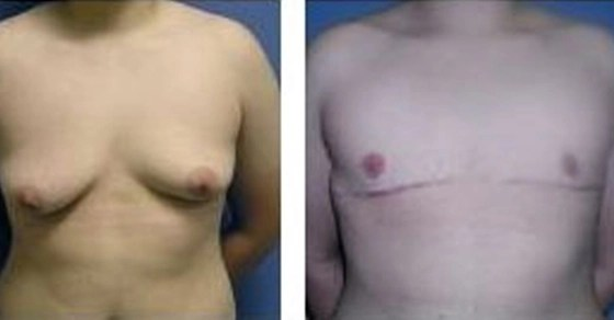 Female-to-Male-Surgery