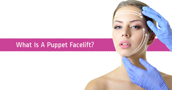 Puppet Facelift Procedure