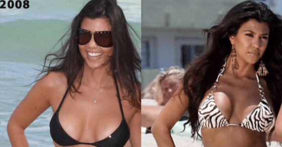 Before-After-Cosmetic-Procedure-Kourtney-Kardashian