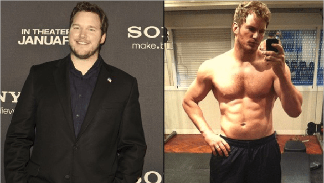 Before & After Cosmetic Surgery - Chris Pratt