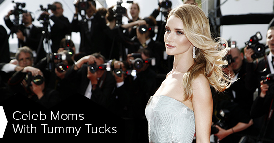 Celeb Moms With Tummy Tucks