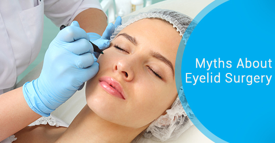 Myths About Eyelid Surgery