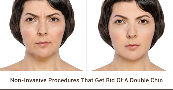 Non-Invasive Procedures That Get Rid Of A Double Chin