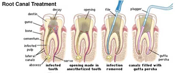 root canal treatment broken tooth