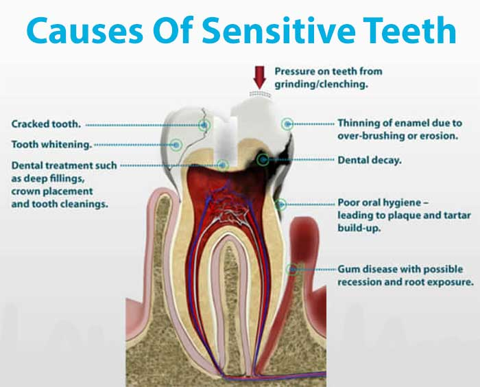 Common causes of Tooth Sensitivity