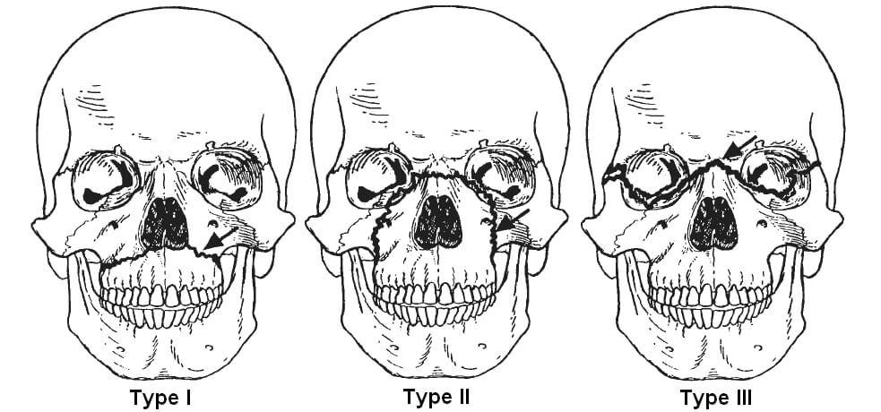 Neurosurgery 1- – Surgery Questions
