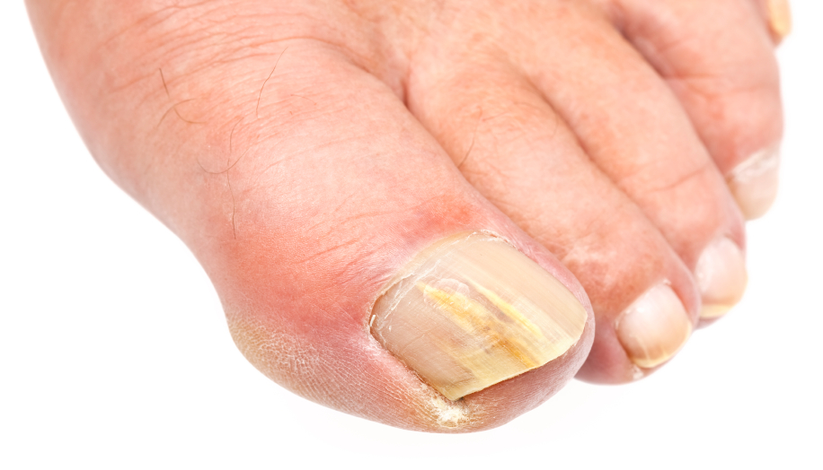 Yellow Nails On Toe Are Cosmetically Disfiguring And Have Potential To Spread Locally They Usually Result From Fungal Infection Can Be Treated