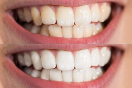 teeth whitening cannon hill