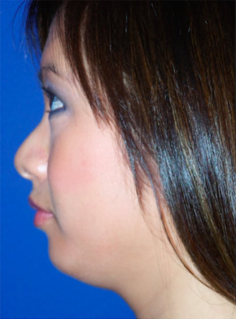 Chin Implant - Best Cosmetic Surgeons Baltimore