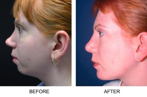 Kết quả hình ảnh cho chin implant
