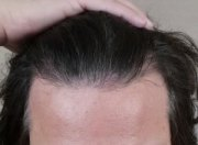 hairline design in hair transplantation