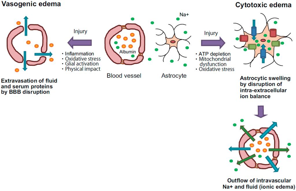 IJMS | Free Full-Text | Pathogenesis of Brain Edema and ...
