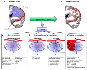 IJMS | Free FullText | Improving Cerebral Blood Flow after Arterial Recanalization: A Novel