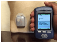 JCM | Free Full-Text | An Overview of Insulin Pumps and ...