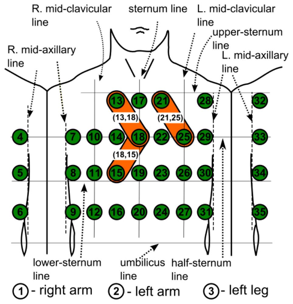 12 lead ekg placement diagram 2001 pajero radio wiring sensors | free full-text two proximal skin electrodes — a respiration rate body sensor html