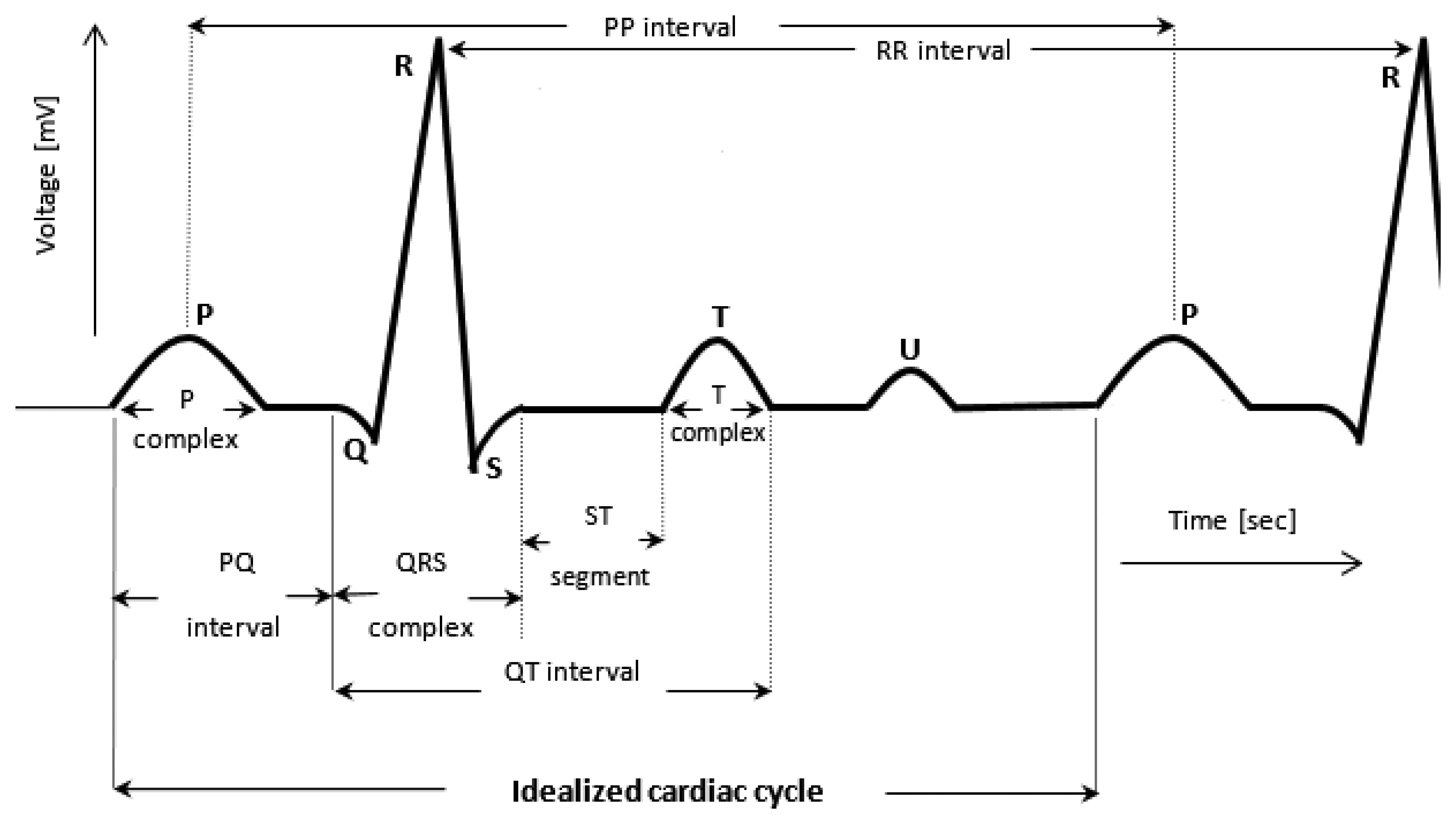Ecg Lead Diagram