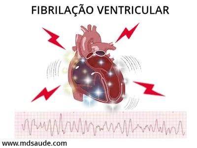 Fibrilação ventricular - morte súbita