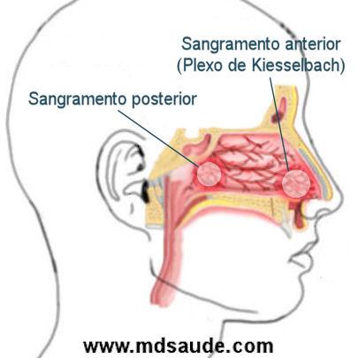 Epistaxe - sangramento do nariz