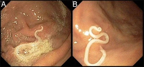 Anisakis identificado en una endoscopia digestiva.