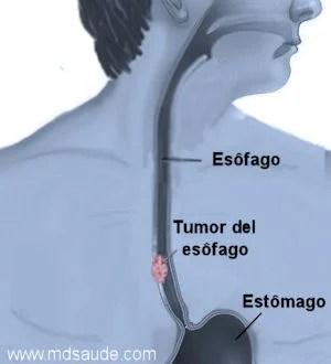 cancer del esófago