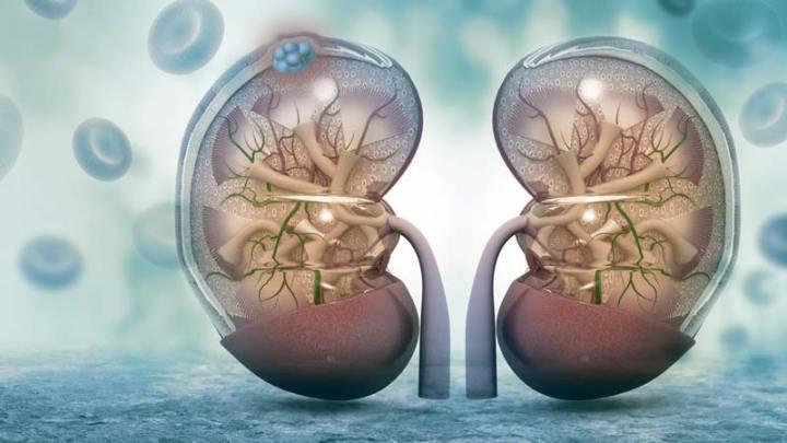 Câncer renal