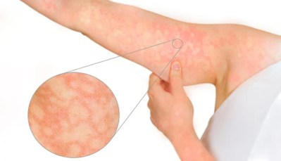 Rash do eritema infeccioso