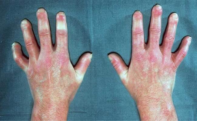 Esclerodermia Causas Síntomas Y Tratamiento Md Saúde
