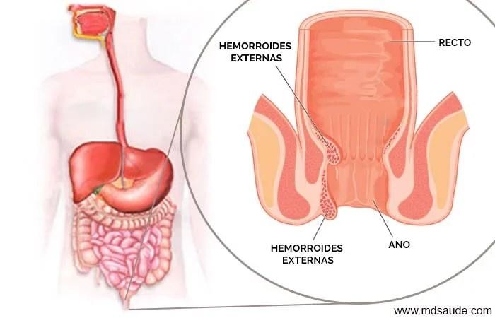 Hemorroides externas y internas